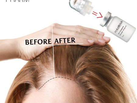 Soon! HAIRNA Premium Scalp & Hair Loss Care