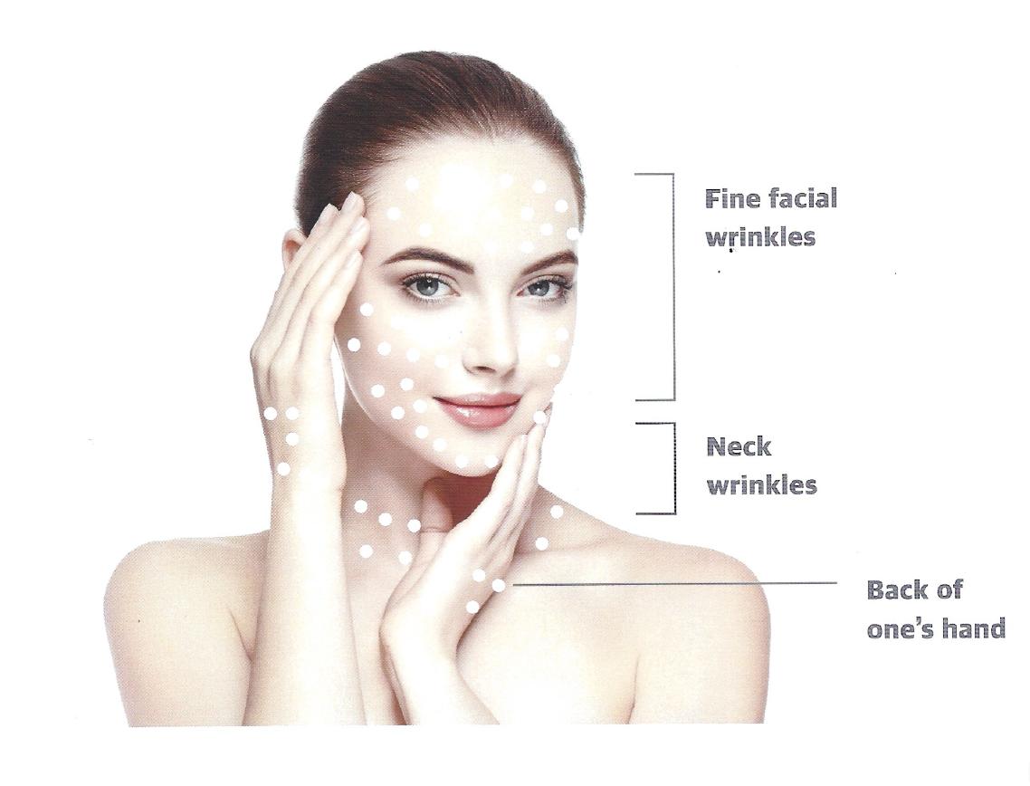 maypharm h-dna mesotherapy hyaluronic acid polynucleotides cell regeneration moisturizing for face fine wrinkles neck wrinkles hand wrinkles